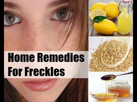 Freckle Removal | Home Remedies to Get Rid of Freckles