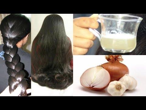 Diy Garlic Onion Hair Mask for extreme Hair Loss | Promote Hair Growth