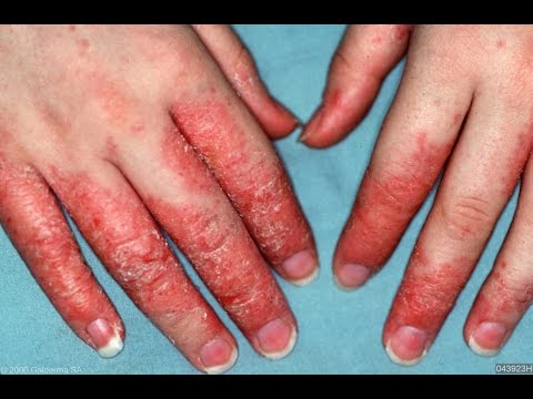 NATURAL Eczema Cure & Remedy!!!  How to GET RID of Dry Hands, Red Fingers!
