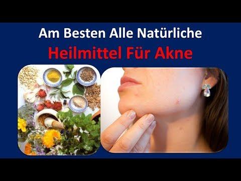 Am besten Alle natürliche Heilmittel für Akne | Tee Baum Öl & Kokosöl