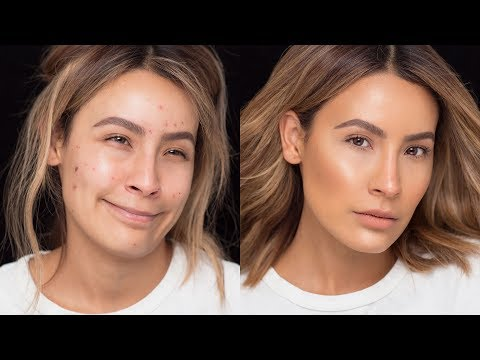 FLAWLESS SKIN WITH ACNE BREAKOUTS | DESI PERKINS