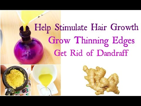 How to Grow Hair Long Thick & Healthy Fast | Natural Remedy with Ginger Root Hair loss and Dandruff