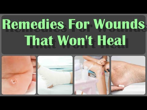 10 Natural Home Remedies For Wounds That Won't Heal And 4 Reasons Why Foot Wounds Don't Heal