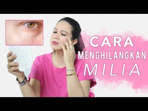Cara Menghilangkan Milia | FD Skincare 101