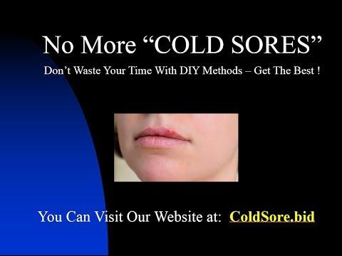 Cold Sore Chinese Medicine