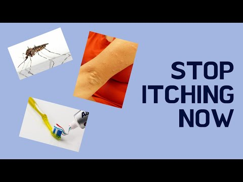 How To Get A Mosquito Bite To Stop Itching RIGHT AWAY