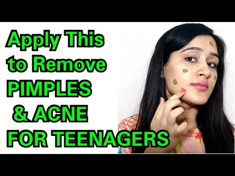 TEENAGERS SPECIAL PIMPLE + ACNE REMOVAL - QUICK AND EASY