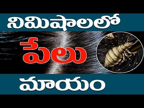 నిముషాలలో పేలు మాయం ..? || How To Remove Lice From Hair Permanently