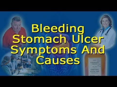 Bleeding Ulcer Symptoms And Causes - How To Know If You Have A Bleeding Stomach Ulcer