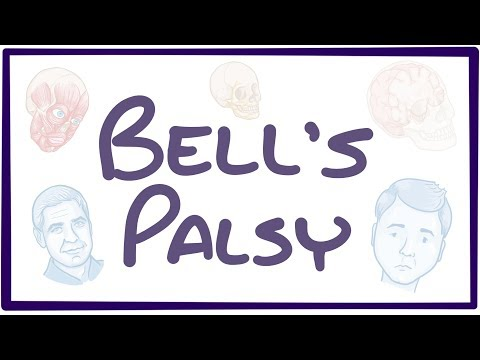 Bell's Palsy - causes, symptoms, diagnosis, treatment, pathology