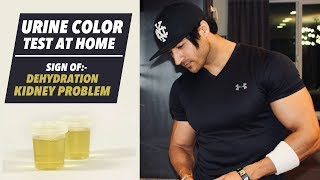 Urine Color Test - Sign of Dehydration & Kidney Problem | Important info by Guru Mann