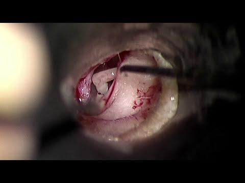 Stapedotomy Ear Surgery to Treat Otosclerosis