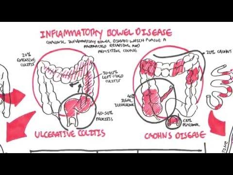 Inflammatory Bowel Disease - Crohns and Ulcerative Colitits