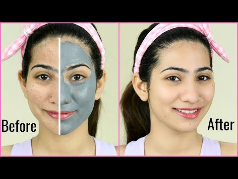 This MASK Removes EVERYTHING - Blackheads, Whiteheads, Bumps, Pimples | Anaysa