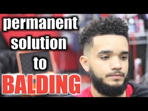 Bald Fade Tutorial & permanent solution to balding & receding hairlines!