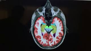 My full body MRI at Health Nucleus