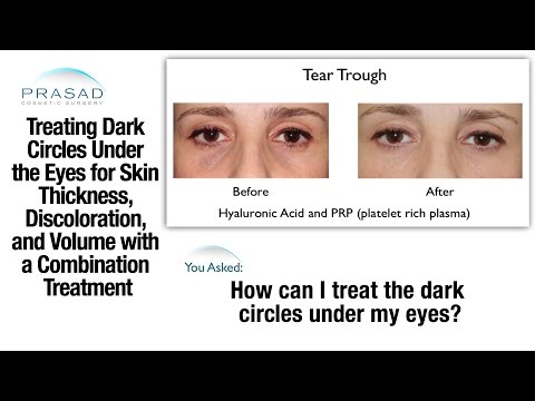 How Hollow Under Eyes & Dark Circles are Treated with a Combination to Add Volume and Thicken Skin