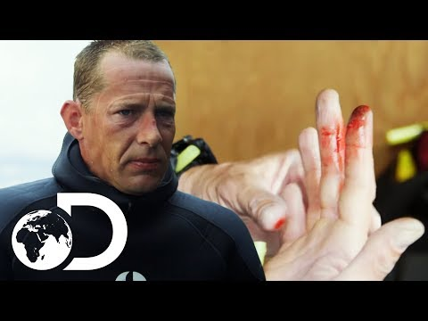 Injury Puts An Early End To Captain Kris' Dive | Gold Divers
