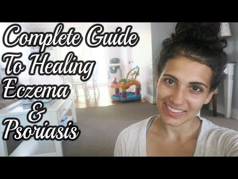Cause's of Eczema and Psoriasis and How To Naturally Heal It For Good | Tips & Supplements