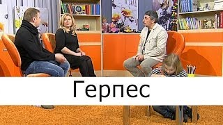 Герпес - Школа доктора Комаровского
