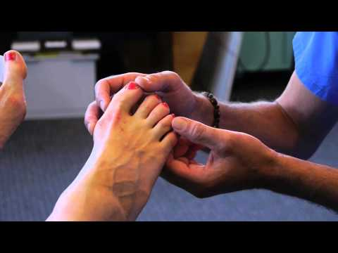 Spread Your Toes™ Series: Corns Conservative Care vs. Conventional Care