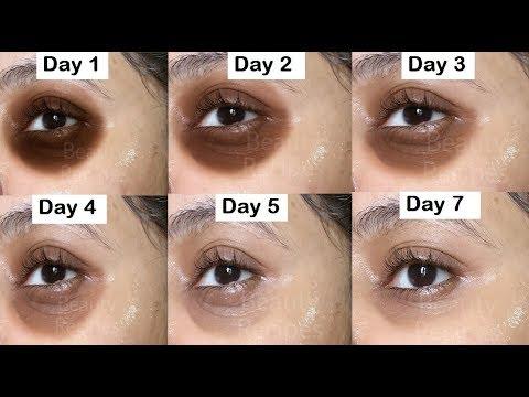 Remove DARK CIRCLES in 7 Days, Under Eye WRINKLES, Eye Bags, Anti Aging Eye mask, Cucumber Eye Gel
