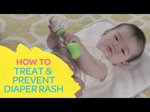How To Treat & Prevent Diaper Rash | Best For Baby
