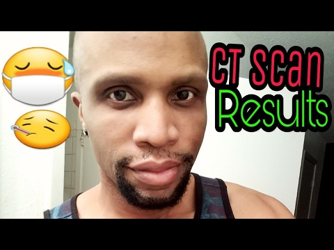 Life Update : CT Scan Results! (Ep.#7)