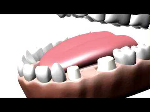 Cost of a Dental Tooth Bridge