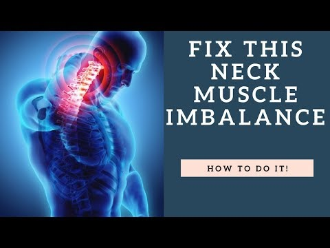 FIX This Neck Muscle Imbalance To Stop Neck Pain And Headaches