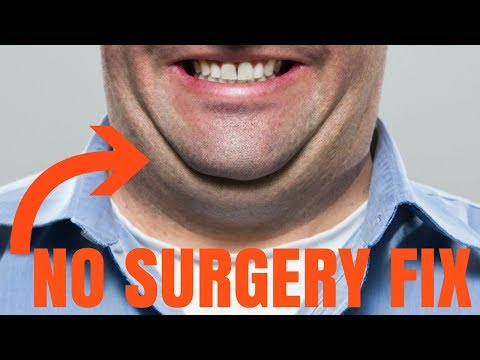 CHIN FAT REDUCTION - without surgery