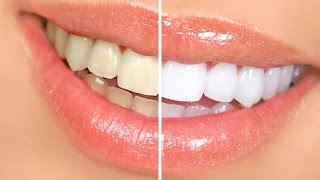 DIY- Whiten Your Teeth Naturally (Coconut Oil)