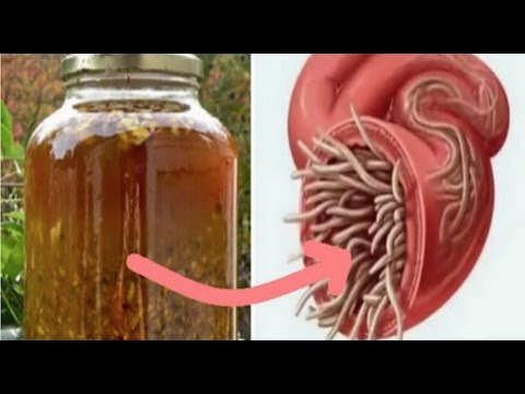 Cure All Infections And Kill All Parasites With This DIY Antibiotic