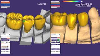 Digital Smile Design with Exocad and Einscan Pro face