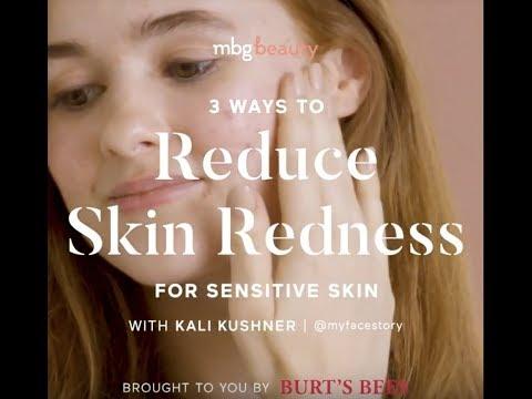 3 Ways To Reduce Skin Redness For Sensitive Skin With Kali Kushner
