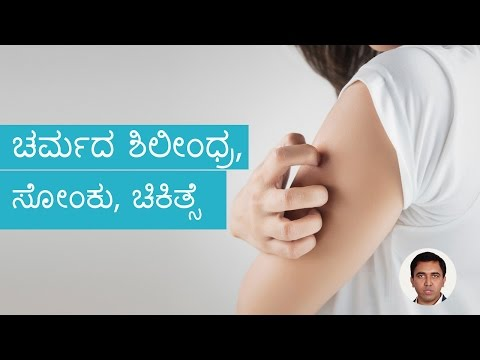 Fungal Skin-Infections – Causes, Symptoms And Treatment | Kannada