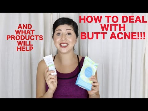 How to deal with BUTT ACNE/ BODY ACNE