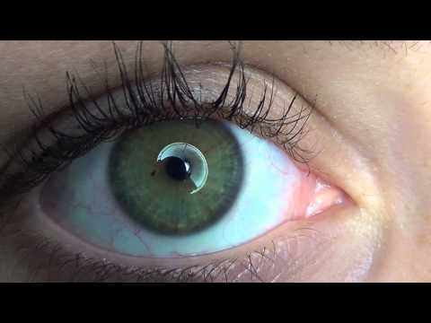 How I made my eye dilate