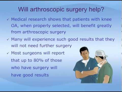 Arthroscopic Surgery for Treatment of Knee Osteoarthritis