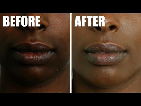 DIY: How To Get Rid Of Hyperpigmentation Around Mouth Fast! Natural Hyperpigmentation Treatment