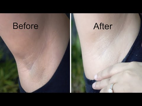 Whiten Dark Underarms in 20 Minutes | Whitening Cream Bleach | Demonstration