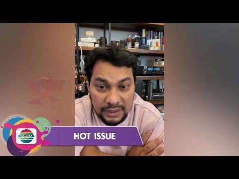 Download Bukan Main-Main!!! dr. Tompi Ingatkan Bahaya Covid-19 Yang Merengut Ibunya!! | Hot Issue Pagi 2021 MP3 Gratis