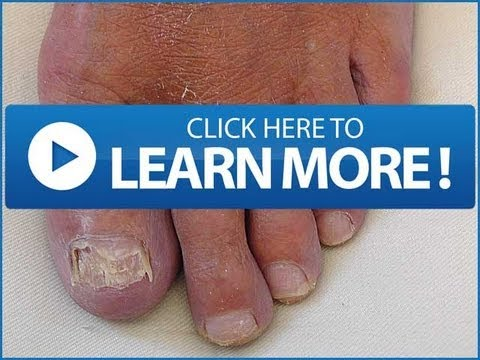 NAIL FUNGUS | What Cause TOE Nail Fungus and How To Prevent Toenail Infection