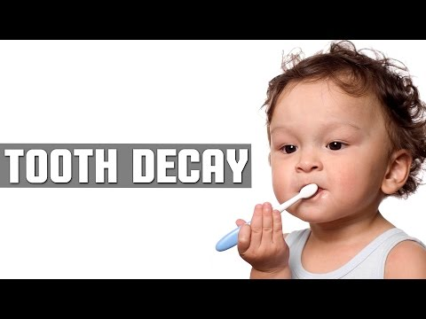 DIY: Best Cure For Kids Tooth Decay with Natural Home Remedies | LIVE VEDIC