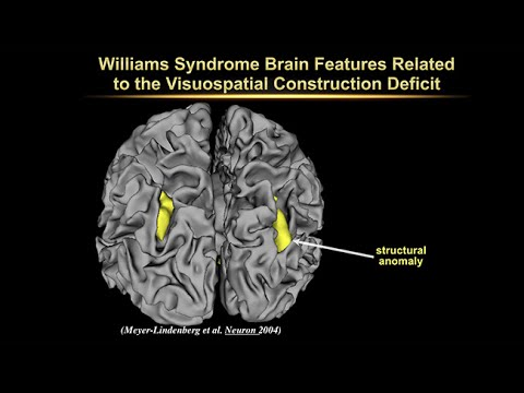 Extraordinary Variations of the Human Mind:Karen Berman:Neurogenetic Mechanisms in Williams Syndrome