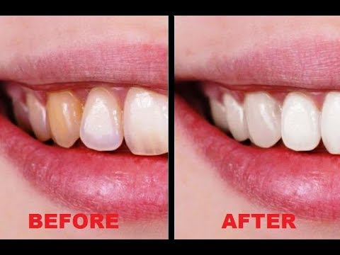 How to Whiten Teeth (On a Budget)