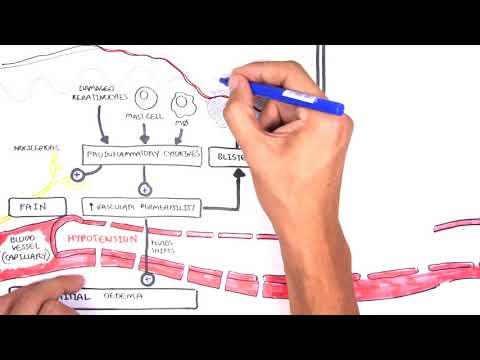 Burns (DETAILED) Overview - Types, Pathophysiology, TBSA