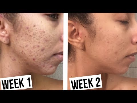 How To Clear Acne In 2 Weeks! Makari De Suisse Skincare!  BiancaReneeToday
