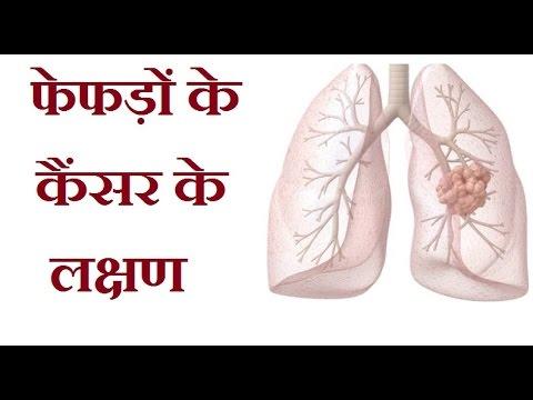 फेफड़ों के कैंसर के लक्षण || Symptoms of Lung Cancer In Hindi