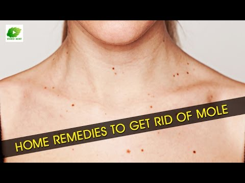 Home Remedies To Get Rid Of Mole   Best Health Tips   Educational Videos